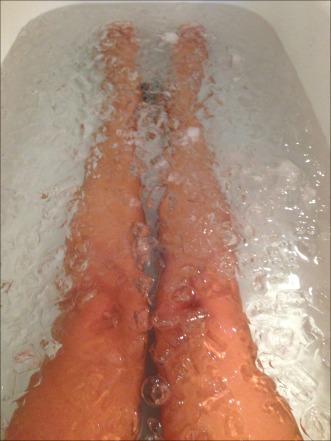 Ice Bath 2